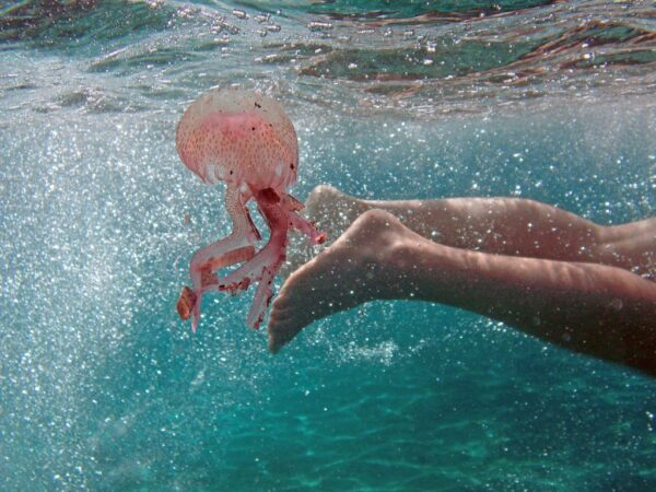ointment for jellyfish stings